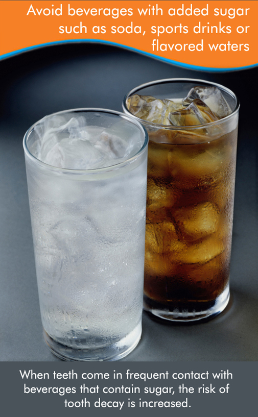 Avoid Sodas for a better Dental Health!
