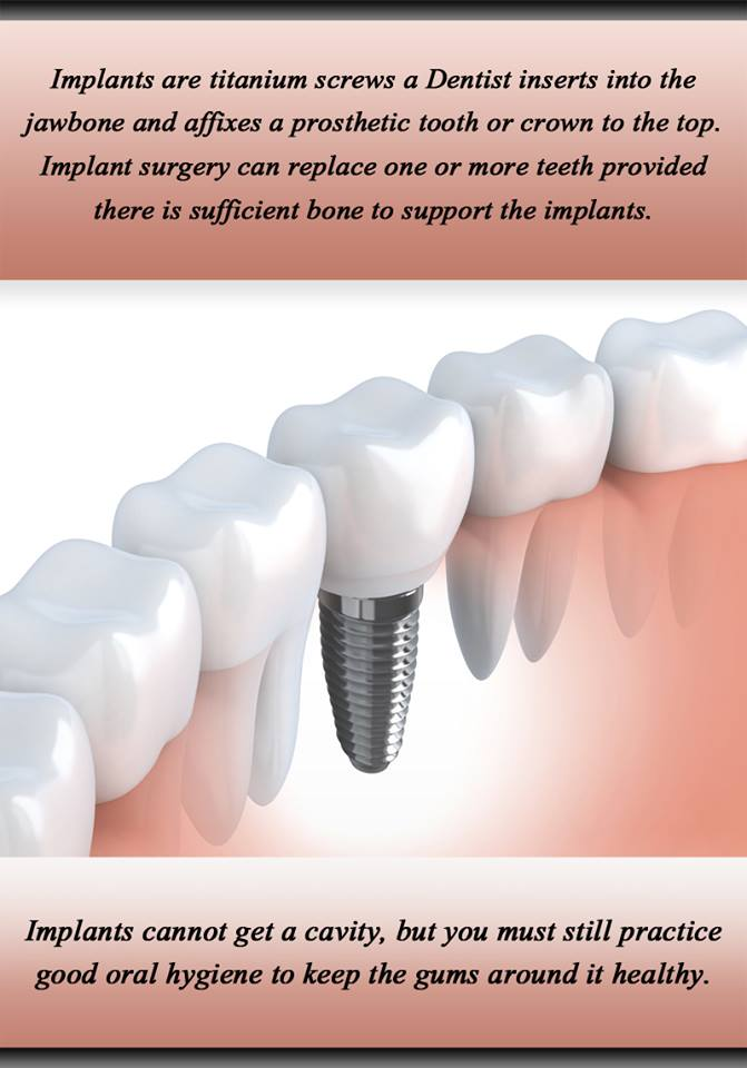 Our Blog Mississauga - Try Dental Implants