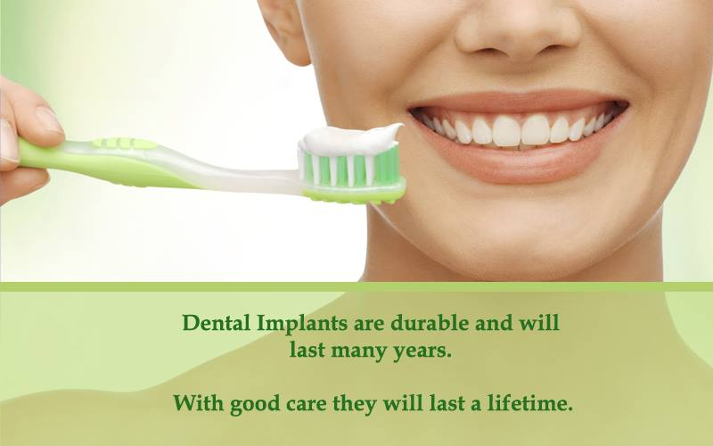 Our Blog Mississauga - Dental Implants are Durable