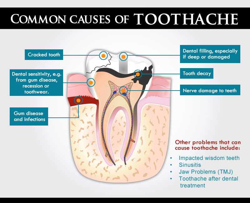 Our Blog Mississauga - Common Causes of Tooth Ache