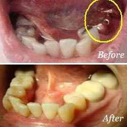 Crowns Mississauga - Crowns Before and After Results