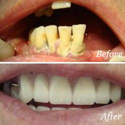 Dentures Mississauga - Dentures Before and After Results