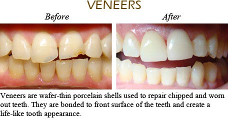Orthodontics Mississauga - Before After Image 1