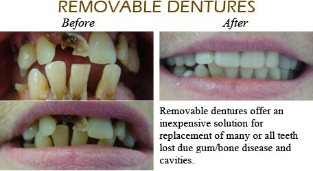 Orthodontics Mississauga - Before After Image 10