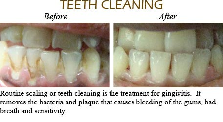 Orthodontics Mississauga - Before After Image 11