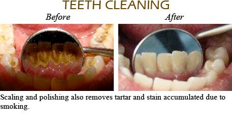 Orthodontics Mississauga - Before After Image 12