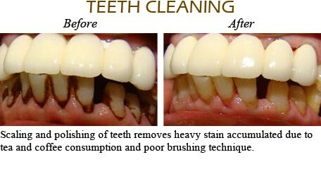 Orthodontics Mississauga - Before After Image 13