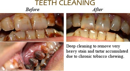Orthodontics Mississauga - Before After Image 14