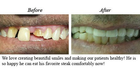 Smile Gallery Mississauga Before After Paitent Image 18