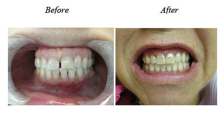 Smile Gallery Mississauga Before After Paitent Image 19