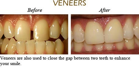Orthodontics Mississauga - Before After Image 2