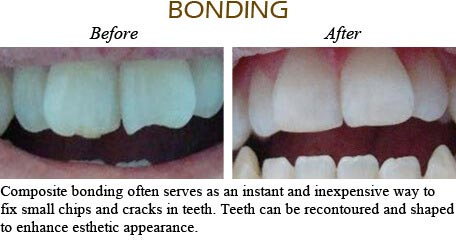 Orthodontics Mississauga - Before After Image 3
