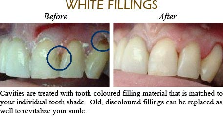 Orthodontics Mississauga - Before After Image 4