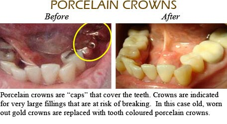 Orthodontics Mississauga - Before After Image 5