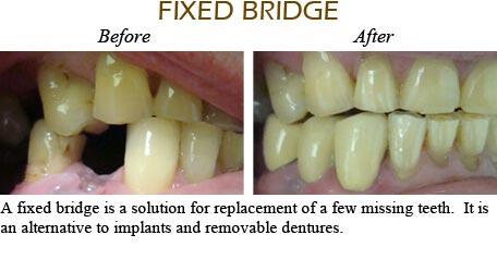 Smile Gallery Mississauga - Before After Image 6