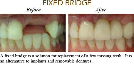 Smile Gallery Mississauga - Before After Image 7