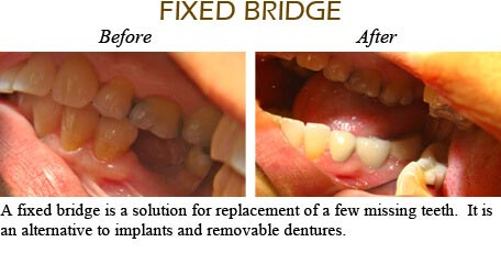 Smile Gallery Mississauga - Before After Image 8