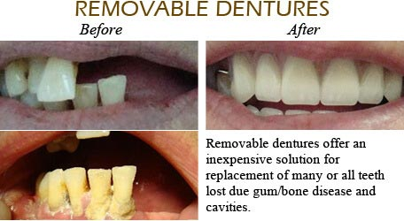 Orthodontics Mississauga - Before After Image 9