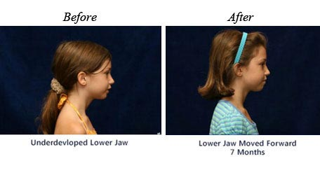 Children Orthodontics - Before After Image 10