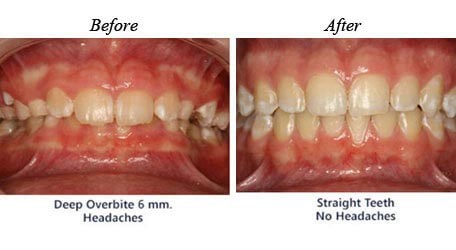 Children Orthodontics - Before After Image 5