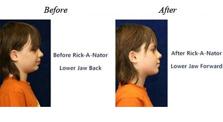 Children Orthodontics - Before After Image 6