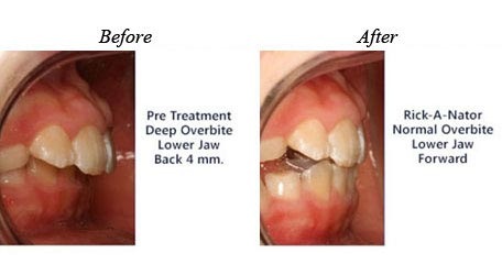 Children Orthodontics - Before After Image 7