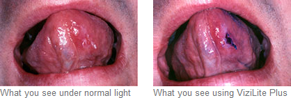Oral Cancer Screening Mississauga - Oral Cancer Screening