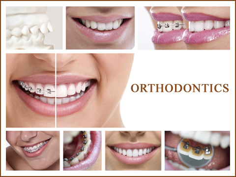 Functional Appliances for Orthodontics for Children, Mississauga - Before After Image 1