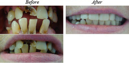 Removable Dentures Before After 02