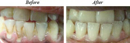 Teeth Cleaning Before After 01
