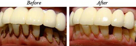 Teeth Cleaning Before After 03