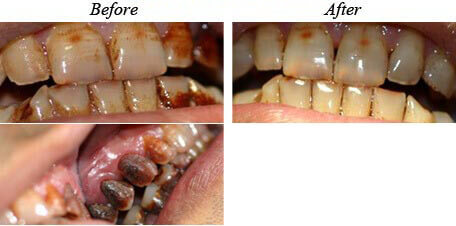 Teeth Cleaning Before After 04