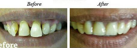 Dentures Before After 01