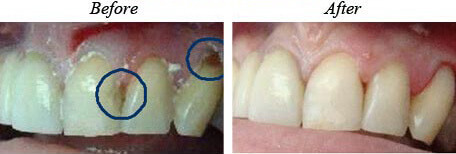 White Fillings Before After 01