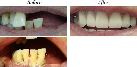 Removable Dentures Before After 01