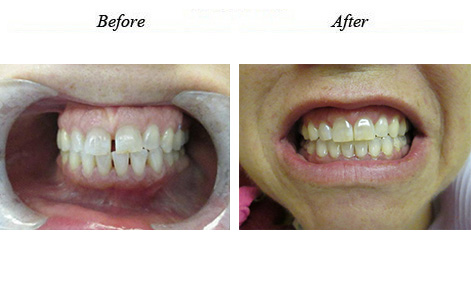 This patient is so happy with her beautiful smile! All spaces closed naturally with Invisalign treatment!