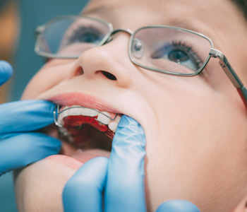 Dentist checking braces on a child