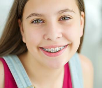 A girl wearing dental braces