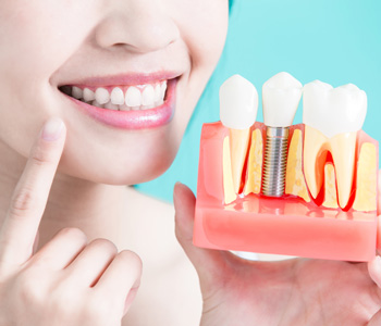 Woman holding a tooth implant model