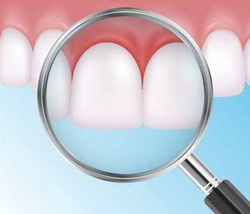Painful teeth with red gums