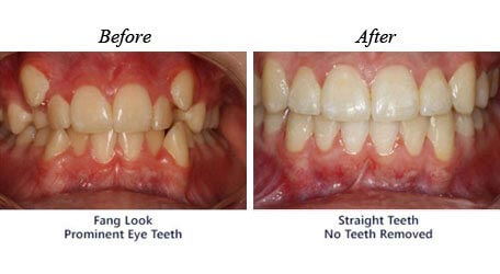 Children Orthodontics - Before After Image 02