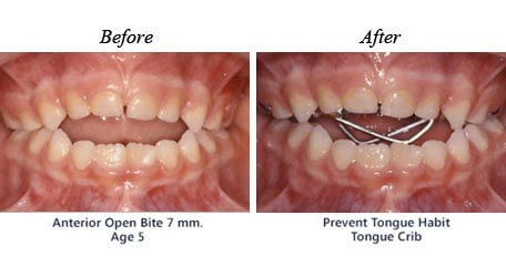 Before and after treatment for                          open bite 01