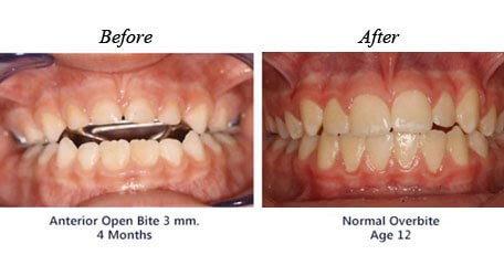 Before and after treatment for                          open bite 02