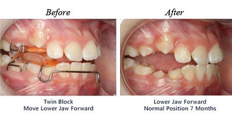 Treatment for Twin block move lower jaw forward, before and after
