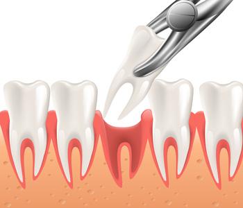 Dental Surgery in 3d