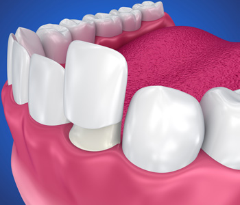 Dental Veneers: Porcelain Veneer installation