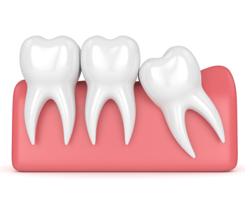 Wisdom teeth extraction illustration