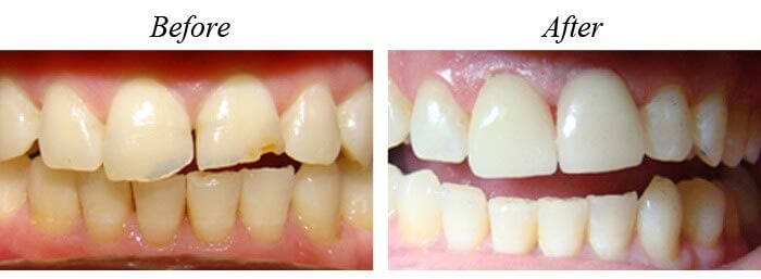 Veneers Before After 01