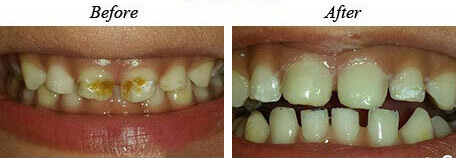 Dental cavities before and after