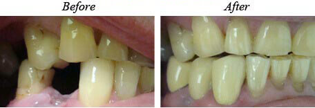 Dental Bridges before and after